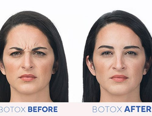 How Botox and Fillers Work to Reduce Wrinkles